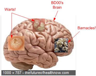 BD00 Brain